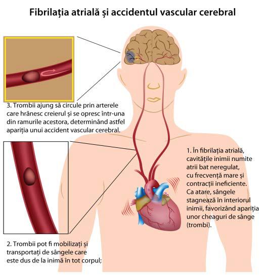 fibrilatie-atriala
